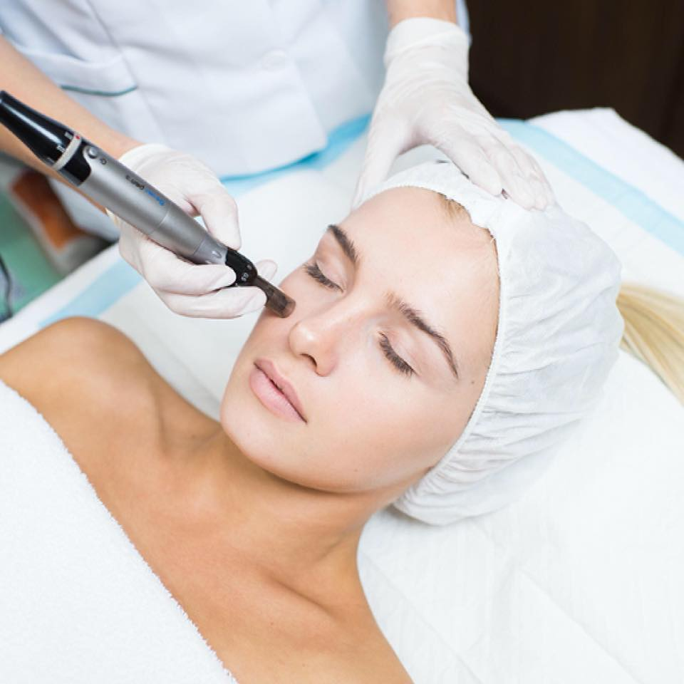 Should You Trust Microneedling Services?